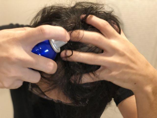 育毛剤を頭皮につける男性