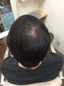 はげかけている男性の髪の毛