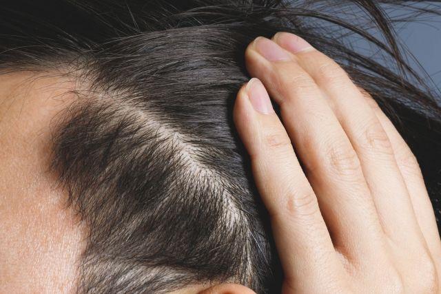 髪の毛の生え際