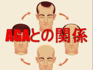 AGAの男性のイラスト