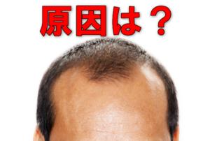 薄毛の原因は?