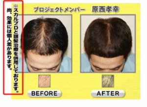 原西さんの髪の毛が増えた画像
