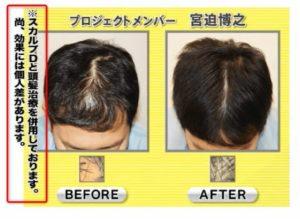 宮迫さんの髪の毛が増えた画像