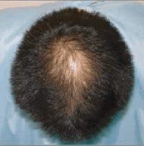 岩尾さんの髪の毛が増えた画像