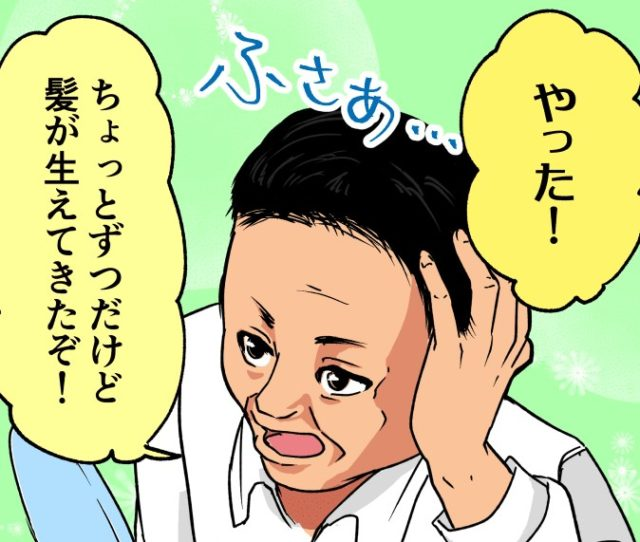 AGA治療で髪が生えるの?