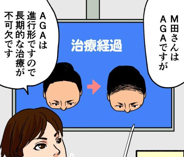 AGAは進行型