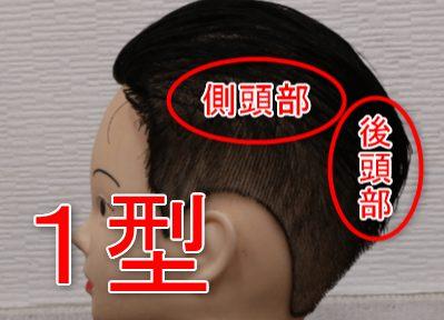 1型5αリダクターゼの存在する側頭部と後頭部をウィッグで示した画像