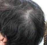 薄毛男性の頭皮の画像