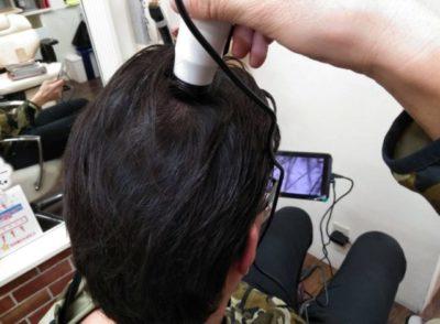 マイクロスコープで毛穴の状態を調べる男性