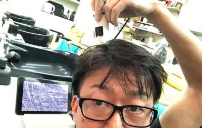 マイクロスコープで頭皮チェックをする男性の画像