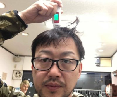 頭皮チェックをする男性の画像