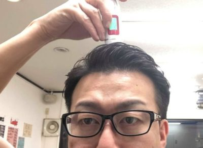 水分チェッカーを頭皮に当てる男性の画像