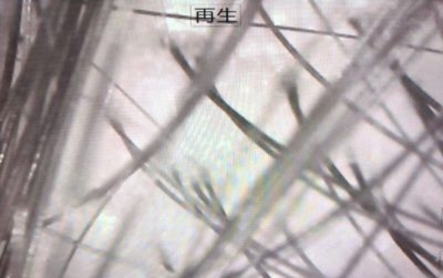 マイクロスコープで見た頭皮の画像