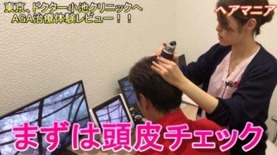 頭皮チェックを受ける男性の画像