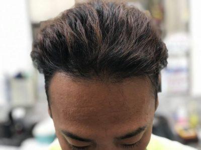 男性の前髪の画像