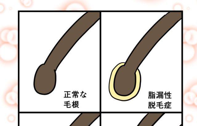 『正常な毛根』の形は?