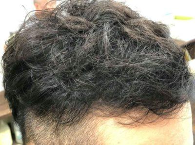 AGA治療を受けた男性の画像