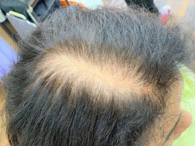 女性の生え際の白髪の画像