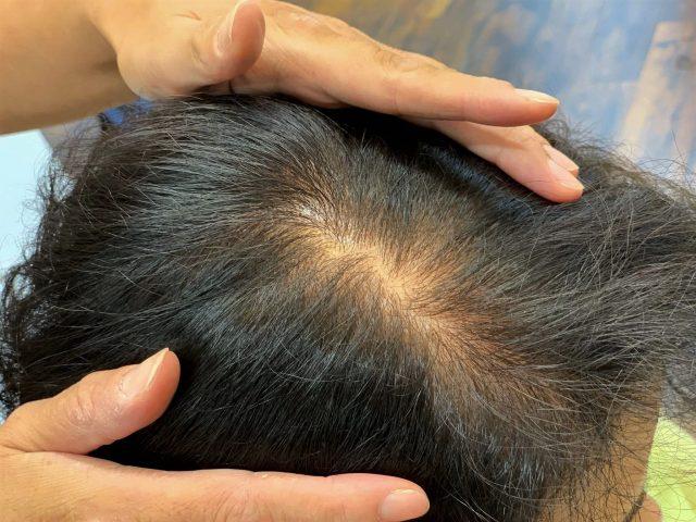 女性のリタッチ後の頭皮の画像