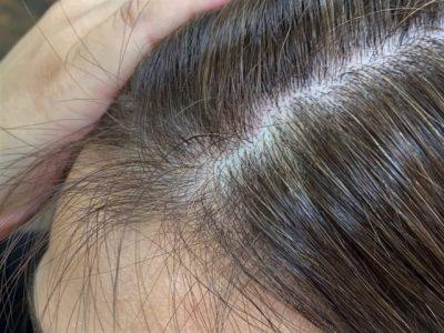 白髪の女性の頭皮の画像