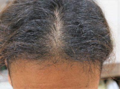 AGA治療をしている男性の画像