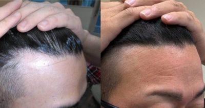 AGA治療中の男性の髪の画像