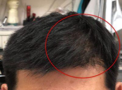 男性の前頭部の画像
