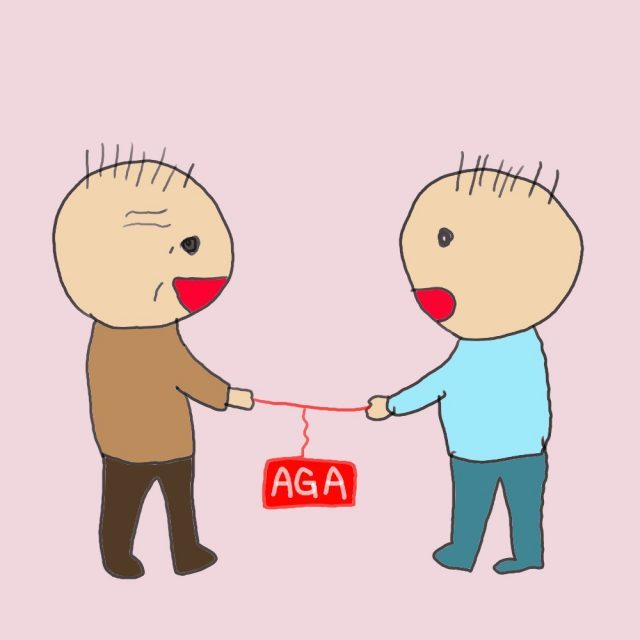 AGAによるはげは父型ではなく母方の遺伝