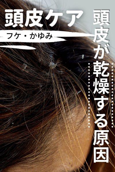 頭皮が乾燥する原因